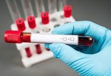Photo of המוגלובין: כל מה שרציתם לדעת – המדריך המקיף